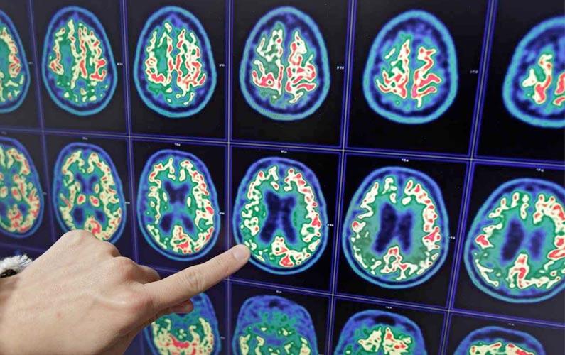Le diagnostic complet de la maladie d'Alzheimer