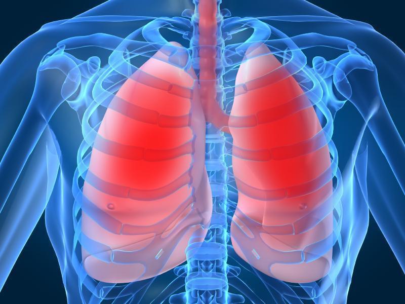 Infections pulmonaires (pneumonies) : remèdes naturels