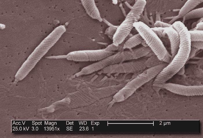 Tout savoir sur Helicobacter pylori