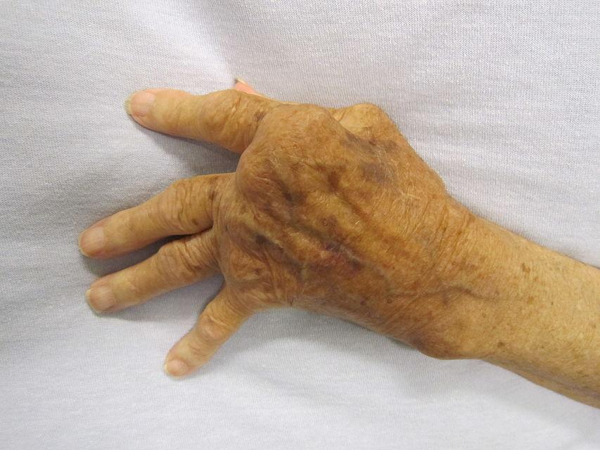 Polyarthrite rhumatoïde : traitements naturels